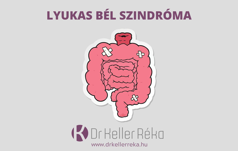 Hogy lehet diagnosztizálni az IBS-t?
